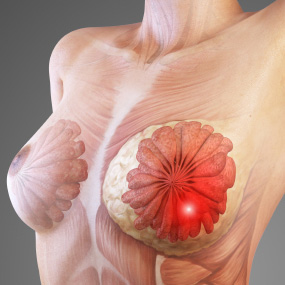 Symptoms of Breast Cancer. (1/3)