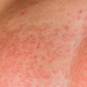 breast cancer rash