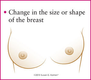 Symptoms of Breast Cancer. (2/3)