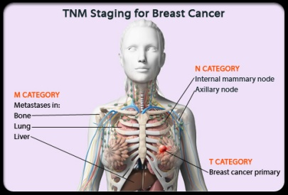 cancer-101-s8-tnm-staging