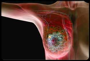 breast-cancer-s2-breast-cancer-illustration
