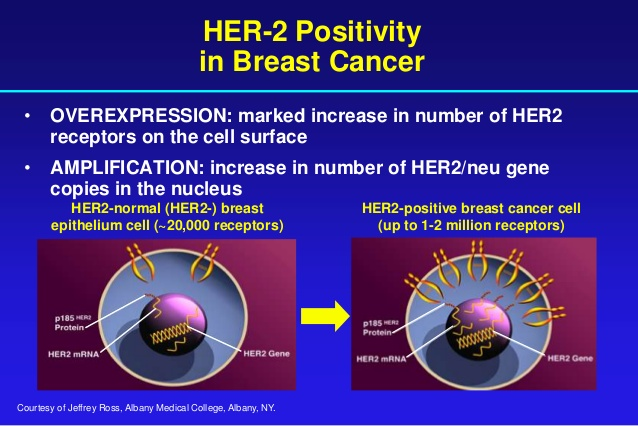 Breast cancer her 2 positive